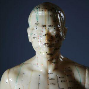 akupunktur muenchen